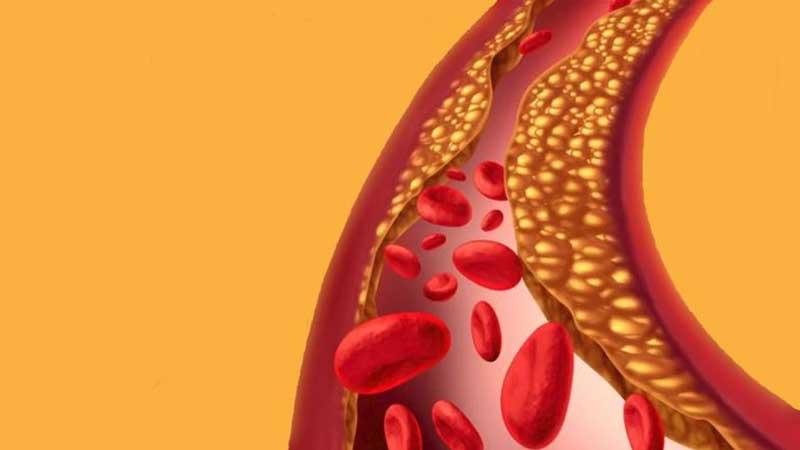 El colesterol: 9 formas naturales de ayudar a bajarlo